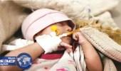 استمرار وباء الكوليرا في انتشاره باليمن