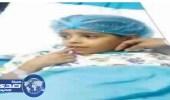 أطباء بالأردن ينجحون في زراعة أصبع طفلة سعودية