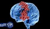 """دراسة أمريكية: فيروس """" زيكا """" يساعد في علاج السرطان"""