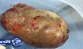نجاح عملية استئصال ورم حميد بحجم ١١سم لمريضة