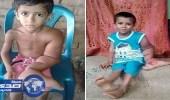 بالصور.. طفل يزيد وزن يده عن 7 كيلو