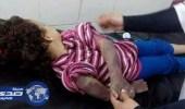 شاهد طفلة مصرية عذبها والدها حتى الموت