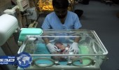 بالصور.. ولادة نادرة لتوأم سيامي في غزة