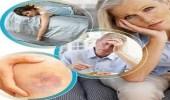 أعراض تؤكد إصابتك بتليف الكبد انتبهوا لها