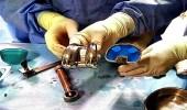 بالصور.. إجراء جراحة دقيقة لتركيب مفصل صناعي بالقصيم