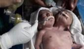 ولادة نادرة لتوأم ملتصق برأسين وجسد واحد في الهند