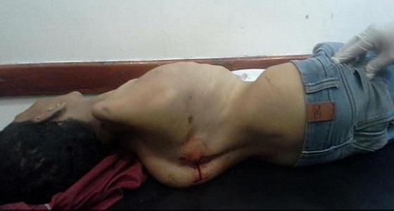 الحوثيون يقتلون طفلا معاقا في تعز