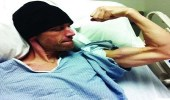 شخص يشفى من سرطان القولون بعدما استبدل العلاج بالطعام النباتي فقط