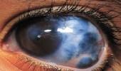 العلاقة بين تناول الشاي و إصابة العيون بالمياه الزرقاء