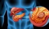 دراسة: فيروس إنفلونزا يحارب سرطان البنكرياس
