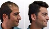 3 حقائق هامة عن زراعة الشعر
