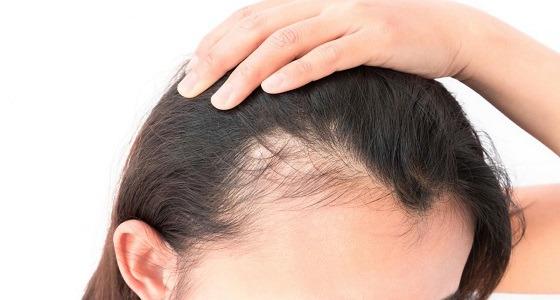 أطباء: علاجات تساقط الشعر تحولك لأنثى مشعرة