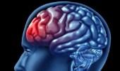 أسباب و أعراض الإصابة بنزيف المخ