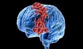 باحثون يكتشفون علاج جديد محتمل لسرطان الدماغ