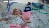 """الصورة الأولى للطفلة الفلسطينية """" فرح """" بعد فصلها عن توأمها"""