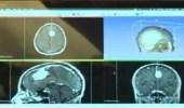 طبيب يستخدم التقنية في طباعة أعضاء من جسم الإنسان لتطوير العمليات الجراحية