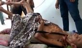 فيديو صادم لجسد رجل يتحول إلى لوح خشب بعد 24 عاما من حادث مأساوي