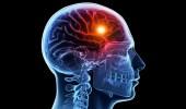 70 % ممن يصابون بالسكتة الدماغية يعانون من ارتفاع ضغط الدم