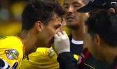 بالفيديو.. لاعب يتعرض لإصابة بالغة في بطولة كوبا سودا أميريكانا