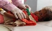 الصحة العالمية: وباء الكوليرا قد يتفشى من جديد في اليمن