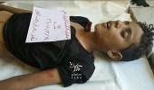 قناص حوثي يقتل طفلا في تعز