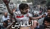 """بالصور.. """" انا عايش """" تعبر عن وجع ودمار أطفال الغوطة الشرقية"""