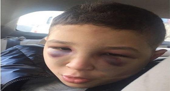 سفارة المملكة بالأردن تتفاعل مع شكوى مواطن بتعرض ابنه للتعذيب