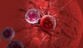 """فيتامين """" د """" يساعد في الوقاية من السرطان"""