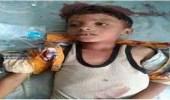 قناص حوثي يقتل طفلا باليمن