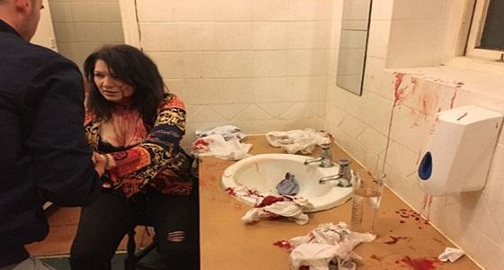 فتاة تحطم رأس أخرى داخل حمام بسبب الغيرة