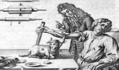 أول عملية في التاريخ..  نقل دم خروف إلى إنسان في القرن الـ17