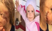 طفلة تفقد أذنها في هجوم وحشي لكلب مفترس