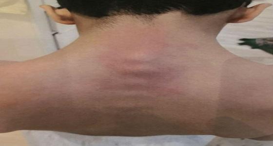 بالفيديو..والد الطالب المعنف والمصاب بإنزلاق فقراته يُكذب تعليم عسير