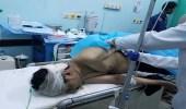 مقتل وإصابة 30 مدنيا يمنيا إثر سقوط صاروخا حوثيا في مأرب