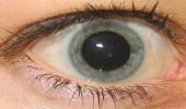 سيدة عربية كادت تفقد بصرها بعدما غيرت لون عينيها