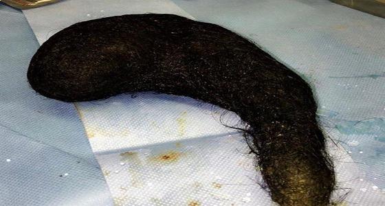 مرض نادر يدفع مواطنة لأكل الشعر.. وإخراج كتلة من معدتها