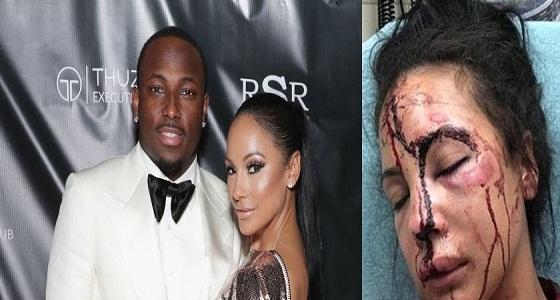 بالصور.. لاعب أمريكي شهير تلاحقه اتهامات بقيامه بالاعتداء على صديقته