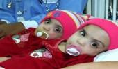 """صورة للتوأم السيامي العماني """" صفاء ومروة """" بعد فصلهما في المملكة قبل 11 عامًا"""