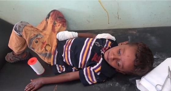 بالفيديو..إصابة طفلين بقناصة الحوثي في حيس بالحديدة