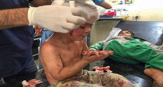 استشهاد وإصابة 28 مدنيًا في العدوان التركي على سوريا