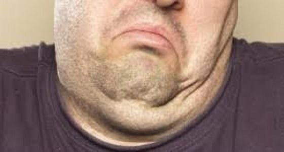 أفضل طريقة للتخلص من مشكلة سمنة الوجه والذقن