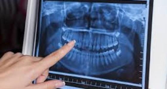 الخضيري يحذر المرضى من تجارة «الأشعة»