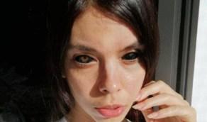 """مهووسة """" تاتو """" تصاب بالعمى بعد قرار صبغ عينيها"""