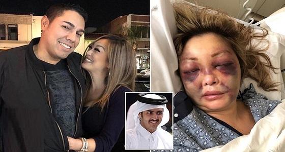 فضيحة جديدة تورط شقيق أمير قطر في ضرب واغتصاب ممرضة أمريكية