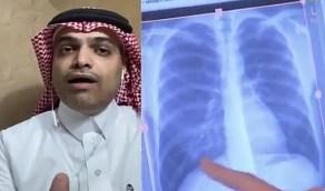 بالفيديو.. 3 طرق حتمية تنقل عدوى الفيروس للإنسان