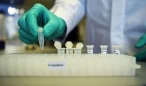 عقاران للالتهاب والملاريا يعالجان 18 مصابًا بكورونا