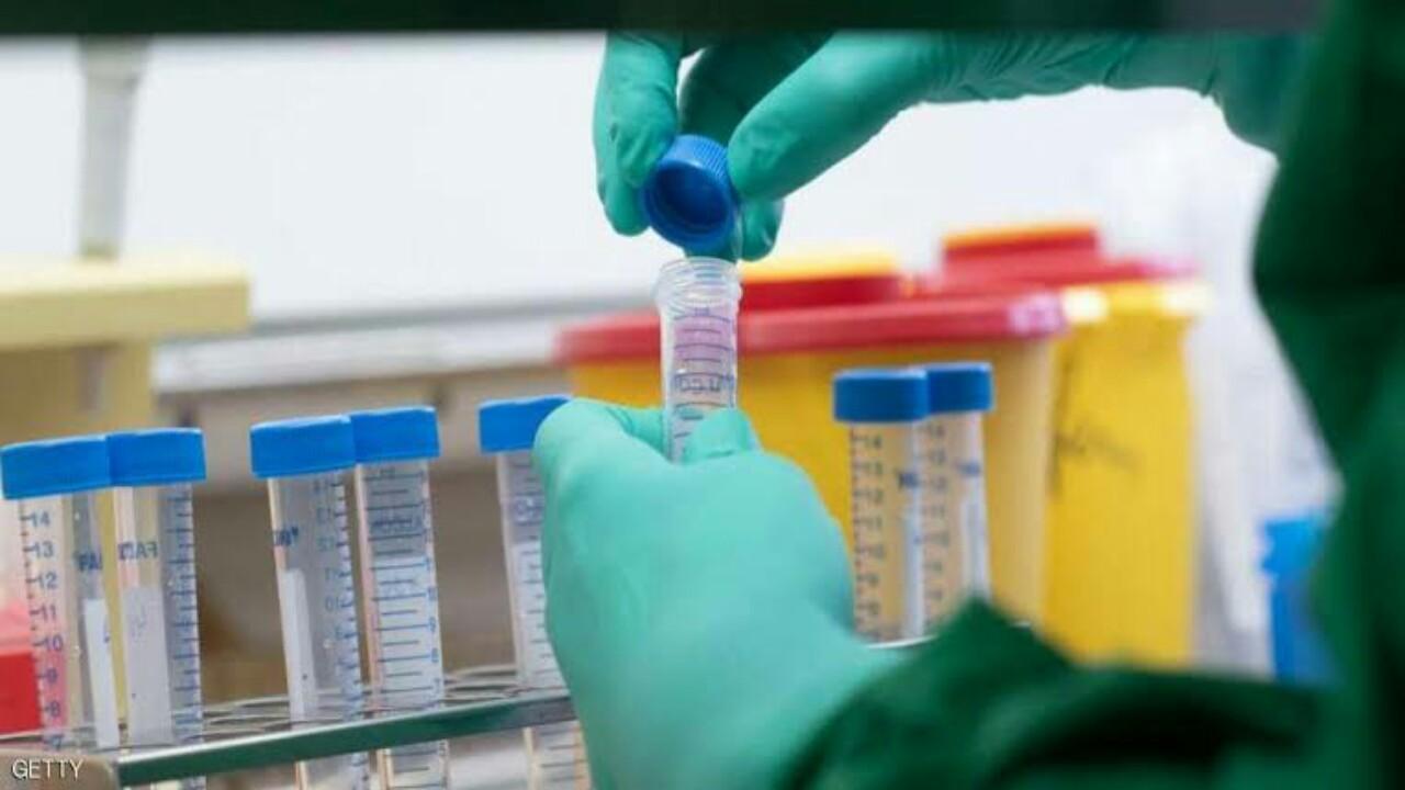 علماء مصريون يكتشفون علاجا لفيروس كورونا