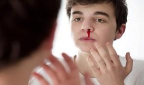 طبيب يوضح حقيقة إزالة الرعاف للدم الفاسد والصداع