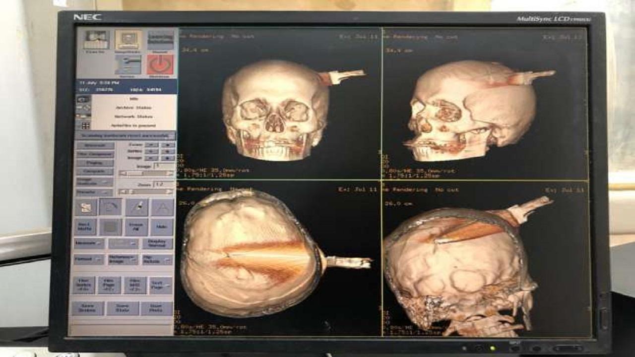 شاب يفشل في الانتحار رغم طعن رأسه بسكين