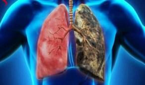 خالد النمر يُعلق على ما يُشاع بأن صحة المدخن أفضل من غيره